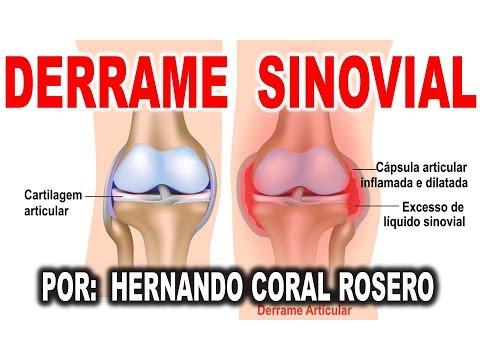 Ehopriznaki inmadurez fisiológica de las articulaciones de la cadera