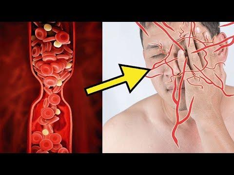 7 Anzeichen, dass dein Körper mehr Magnesium braucht!