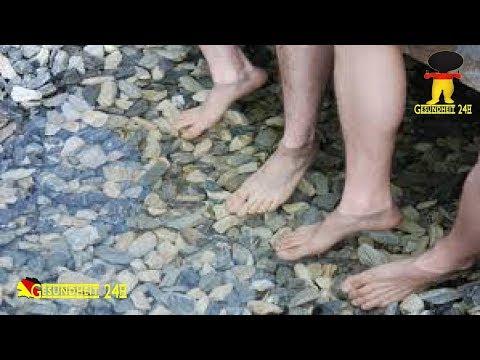 Zinkowaja 10 bei der Schuppenflechte