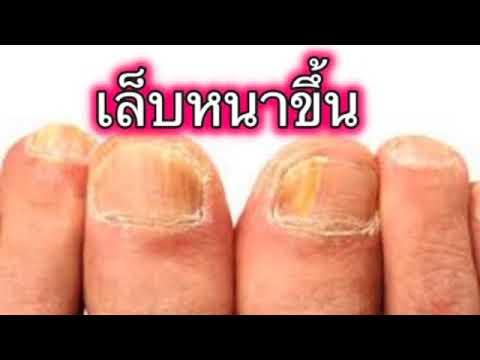 ใช้ celandine ในการรักษาโรคสะเก็ดเงิน