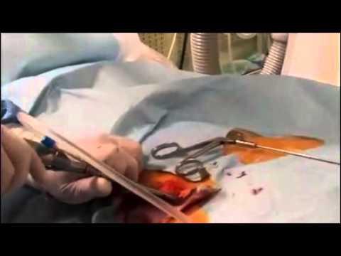 Trattamento fisioterapia dellarticolazione della spalla