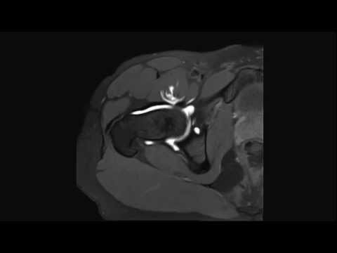 Osteocondrosi del trattamento con farmaci collo