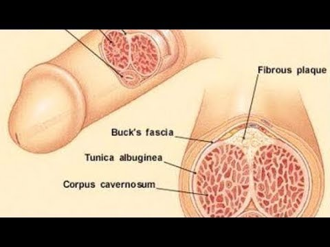 Abstriche von Prostata-Saft Studie