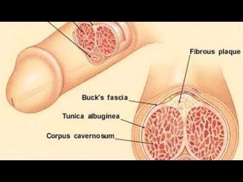 Grad 3 Prostatakrebs Hormonbehandlung