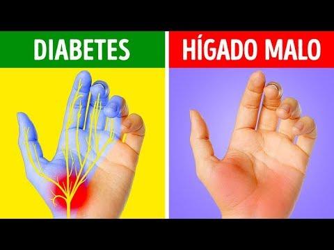 Tiras para la medición de azúcar en la sangre
