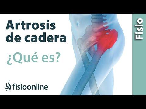 Tratamiento eficaz de las inyecciones de osteoartritis