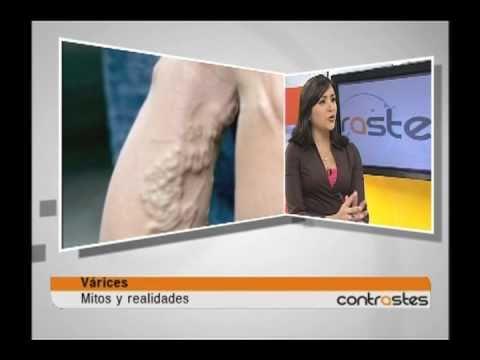 Quanto per trattamento di varicosity di gambe