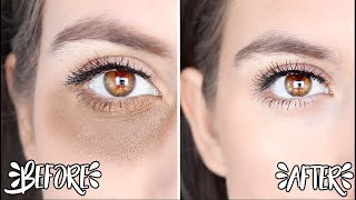 How to Remove Dark Circles Naturally OVERNIGHT !