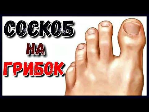 Wie gribok auf den Fingern der Beine das Forum zu behandeln