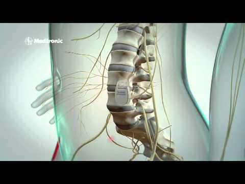 Osteochondrose des Abstrichs einige Salben Bewertungen