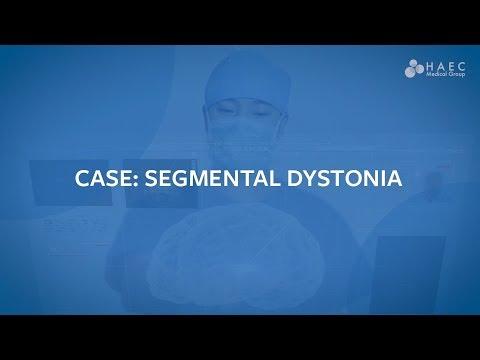 Mekanizmi hipertensionit diuretik i veprimit