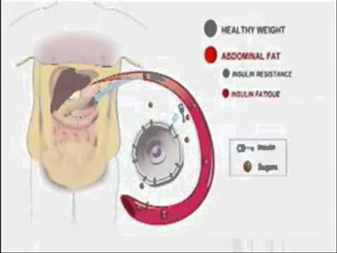 Analyse bei Verdacht auf Diabetes