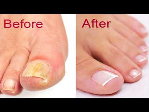 Rubromikoz nail treatment