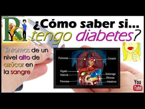 Una lista de los nombres de las tabletas de la diabetes