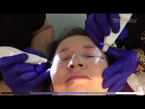 Plexr Treatment Review - Tracey Bell - Before and After