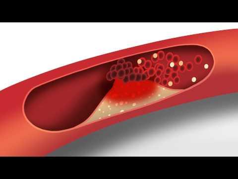 Video Cholesterol animation | Heart disease risk factors