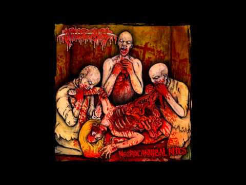 Lokalis หลอดเลือดอุดตัน