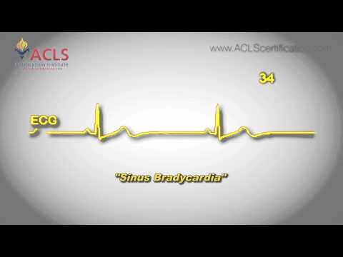 Faza Army rrezik 2 hipertensionit 2