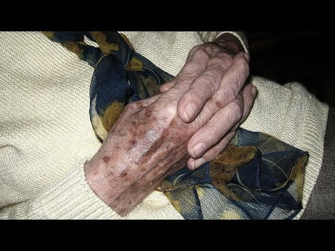Витилиго пигментация кожи лечение