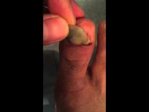 Le régime à la varicosité des veines dans loesophage