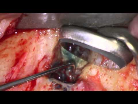 Microsurgical Management Of Via Falsa In Obliterated Canal