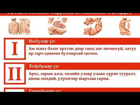 Simptomele și tratamentul ochilor paraziti