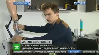 """""""Умный"""" протез"""