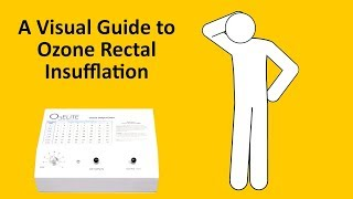 A Visual Guide to Ozone Rectal Insufflation