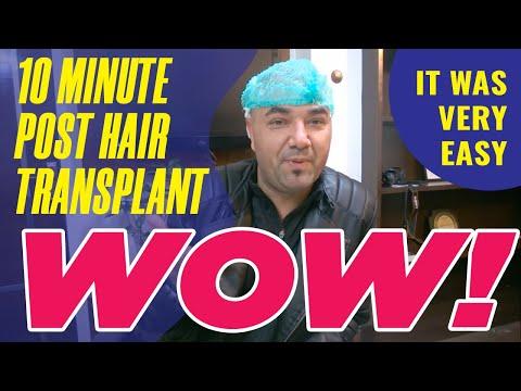 MedLinks hair transplant Patient from USA