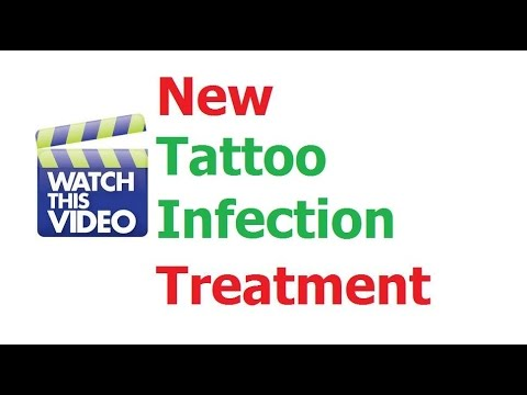 Video How To Treat Tattoo Infection Treatment Healing