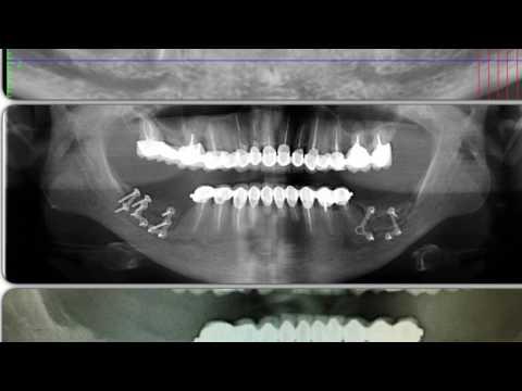 Горизонтальная остеотомия, имплантация и направленная костная регенерация, начало протезирования