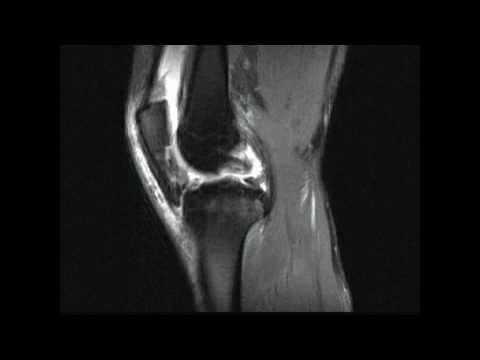 Schmerzen und Schwellungen in den Gelenken der Hände