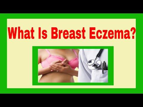 Unguento di eczema alla panna