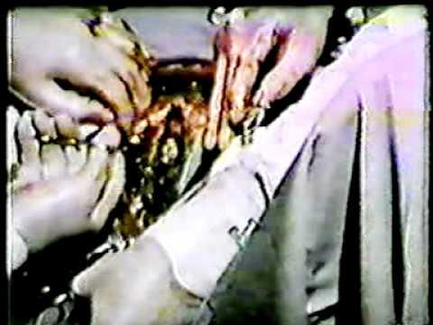 การวิเคราะห์เลือดบนพบแอนติบอดี Giardia