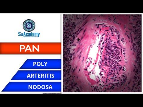 Ízületi fájdalom melanoma