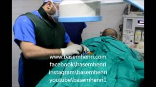 Spine care center - Middle East 06/25/2017