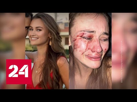 Отдых с последствиями: что произошло с украинской моделью на турецком курорте - Россия 24