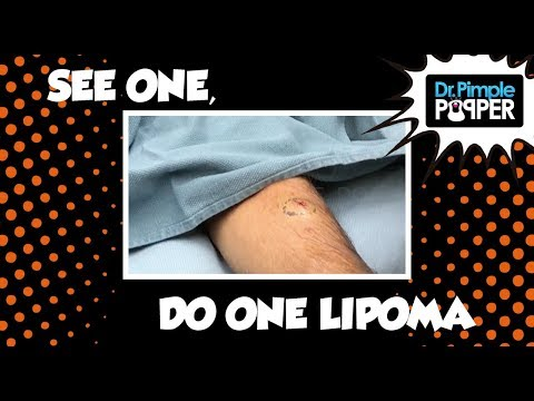 Popping Out a Chunky Lipoma!