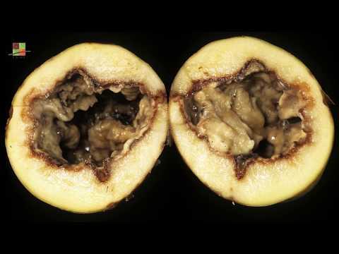 Paraziti intestinali la gravide