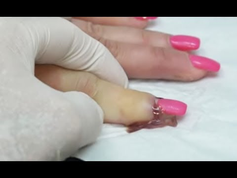 Worst Nail Infections of All Time (HOT)