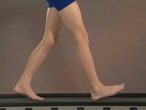 Examen de la artritis de la articulación de la cadera