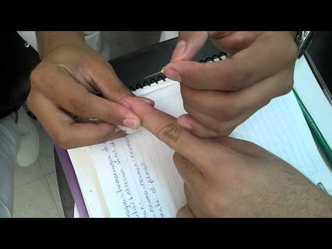 puncion capilar (piquete con aguja)