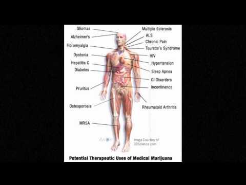 Il trattamento indica il trattamento di osteochondrosis cervicale