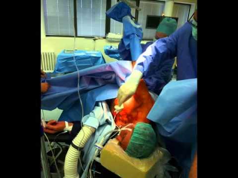 Die Orthese auf das Kniegelenk ILV-202