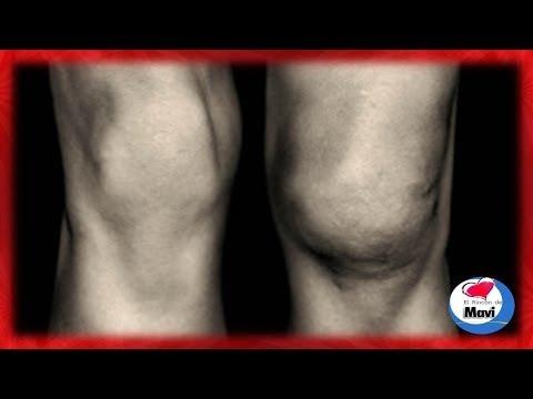 Las revocaciones sobre el régimen para el adelgazamiento del vientre y las caderas
