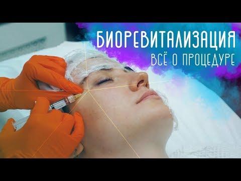 Биоревитализация. Как проходит процедура? Секреты молодости