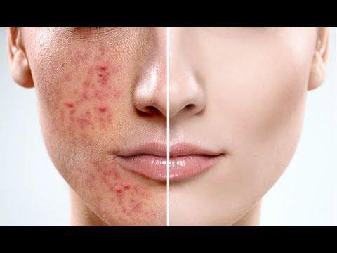 Гиалуроновая кислота Anti-Aging. Уменьшает поры лица и разглаживает морщины от Vibrant Glamour
