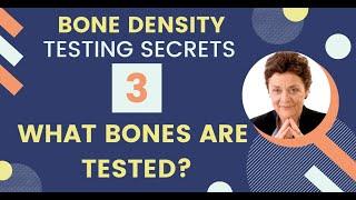 Bone Density Testing Secret 3: What Bones are Tested?