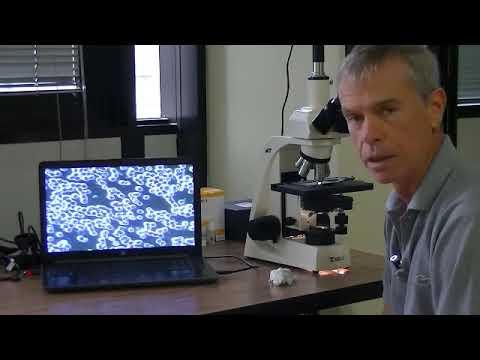 Radice di bardana per il cancro alla prostata