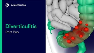 Diverticulitis Part 2 | How Common is it and What Symptoms do Patients Present with?